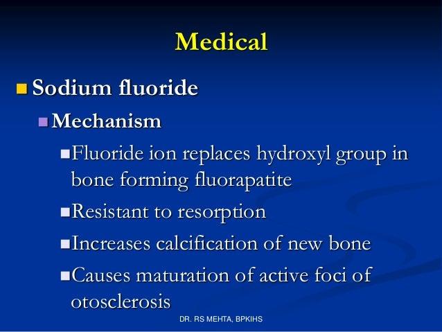 4  otosclerosis