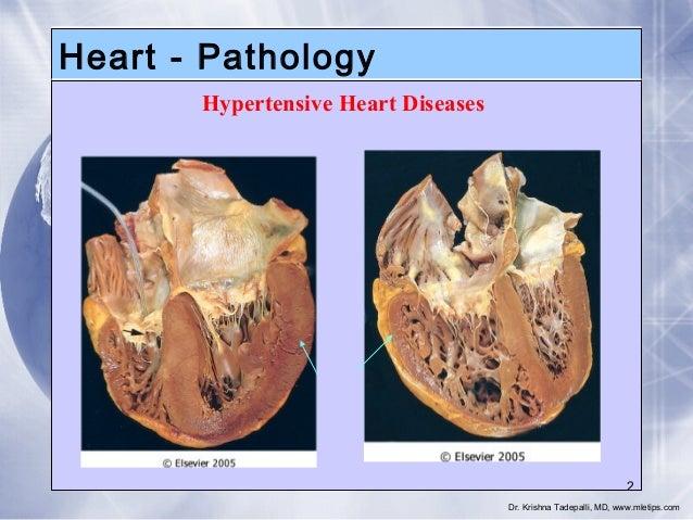 Heart - Pathology Hypertensive Heart Diseases  2 Dr. Krishna Tadepalli, MD, www.mletips.com