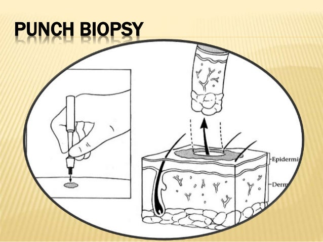 CORE BIOPSY  Fine needle biopsy has been established as a safe procedure and is routinely performed under local anaesthes...