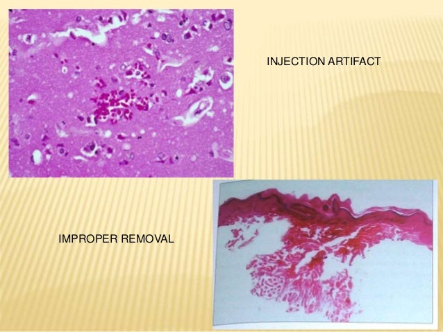 It is not easy to procure a good biopsy specimen, nor is it very difficult, but the procedure must be carefully planned an...