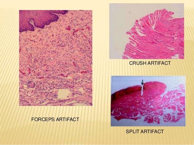 Biopsy ( oral pathology)