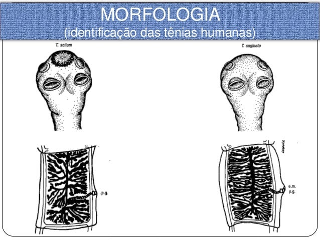 Resultado de imagem para Morfologia de tênias