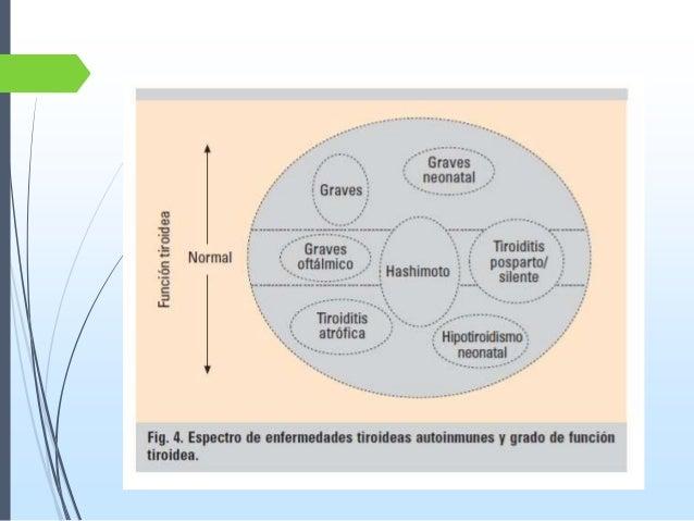 Los anticuerpos a las lamblias los síntomas