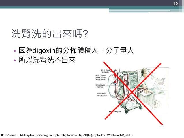 洗腎洗的出來嗎? • 因為digoxin的分怖體積大,分子量大 • 所以洗腎洗不出來 12 Ref: Michael L, MD Digitalis poisoning. In: UpToDate, Jonathan G, MD(Ed), Up...