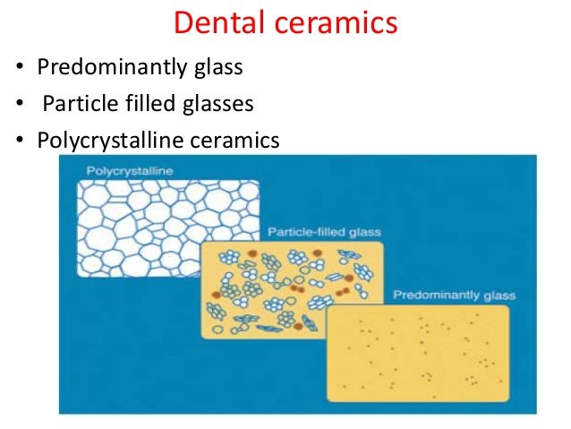 Dental ceramics (Composition,Microstructure and Applications)