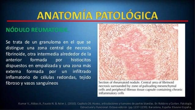Artritis Reumatoide (AR).
