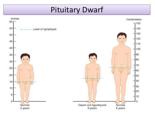pituitary dwarf 35