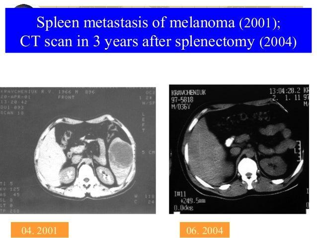 Skin Cancer Malignant Melanoma