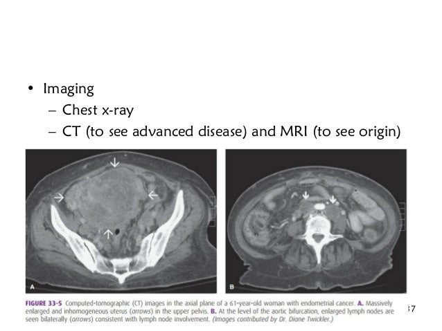 • Imaging – Chest x-ray – CT (to see advanced disease) and MRI (to see origin) Saturday, January 7, 2017 Hale T., M.D., Re...