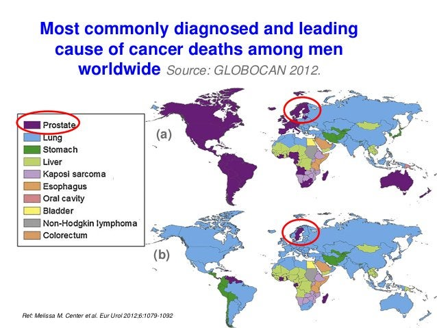 Most commonly diagnosed and leading cause of cancer deaths among men worldwide Source: GLOBOCAN 2012. Ref: Melissa M. Cent...