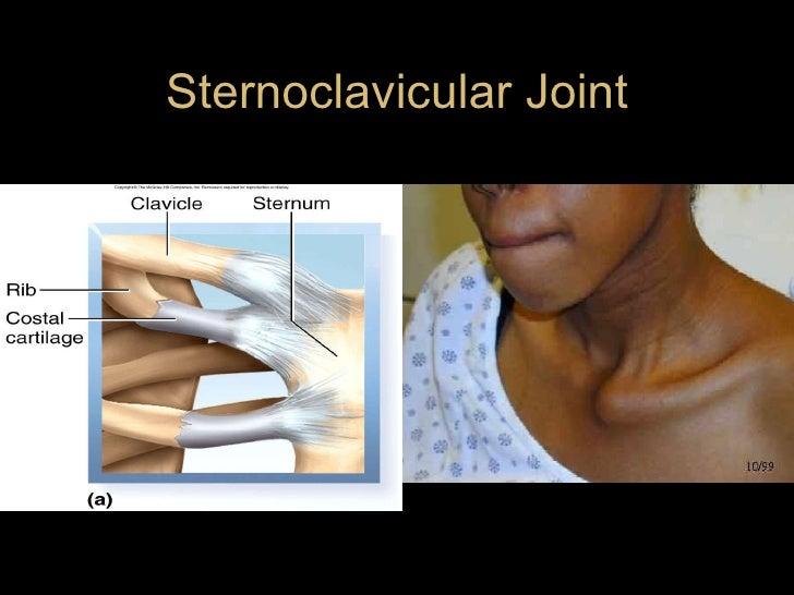 Sternoclavicular Joint