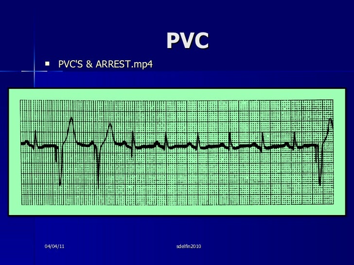 PVC <ul><li>PVC'S & ARREST.mp4 </li></ul>04/04/11 sdelfin2010