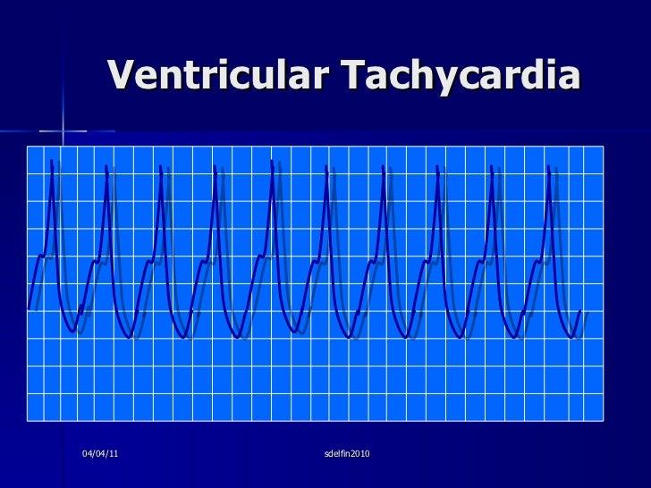Ventricular Tachycardia 04/04/11 sdelfin2010