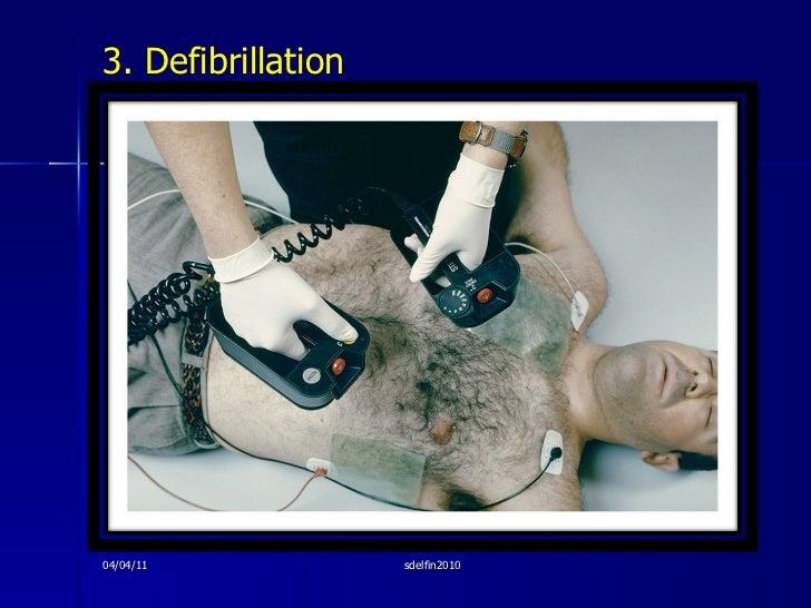 <ul><li>3. Defibrillation </li></ul>04/04/11 sdelfin2010