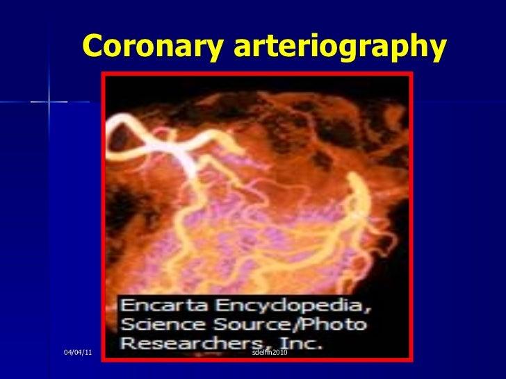 Coronary arteriography 04/04/11 sdelfin2010
