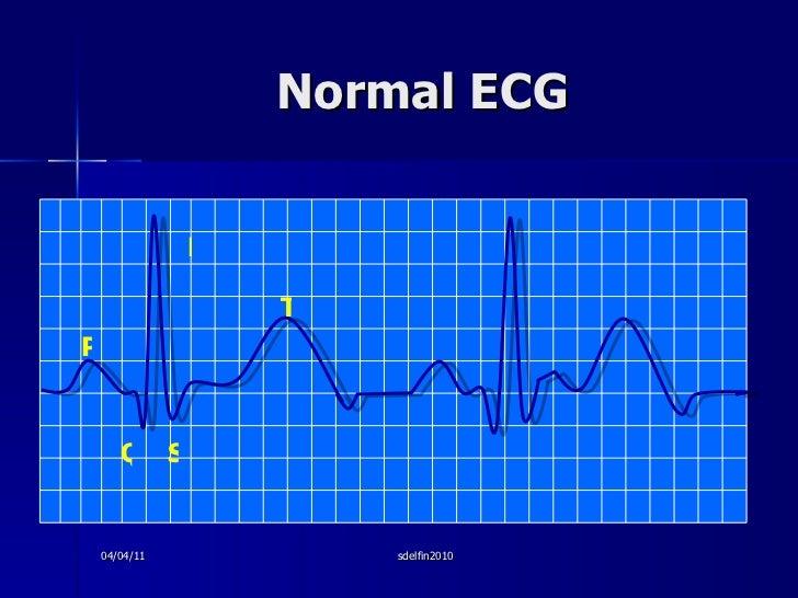 Normal ECG P Q S R T 04/04/11 sdelfin2010