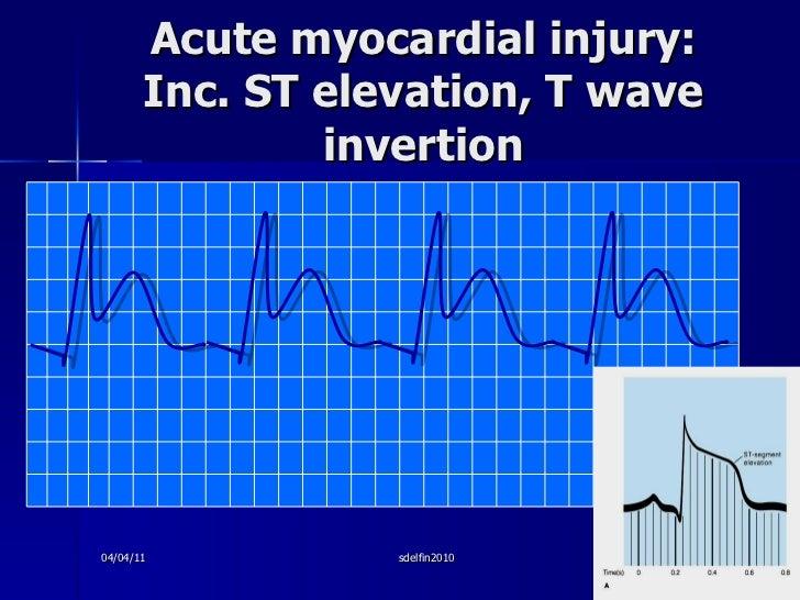Acute myocardial injury: Inc. ST elevation, T wave invertion 04/04/11 sdelfin2010