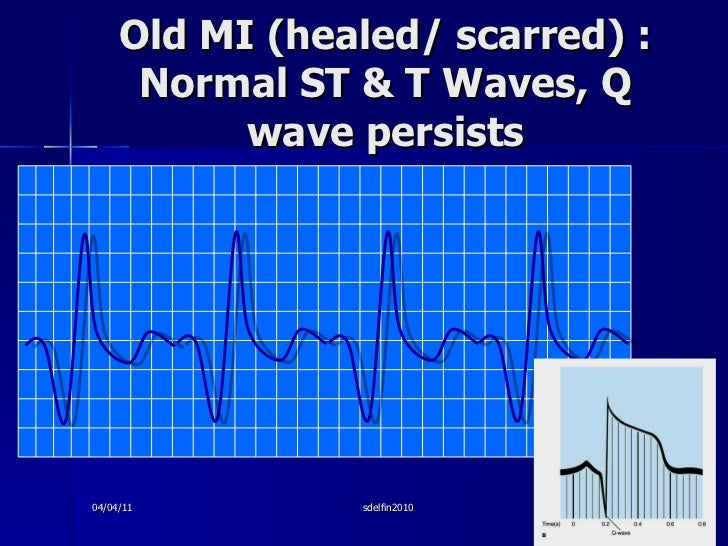 Old MI (healed/ scarred) : Normal ST & T Waves, Q wave persists 04/04/11 sdelfin2010