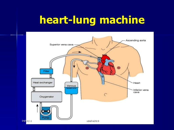 heart-lung machine 04/04/11 sdelfin2010