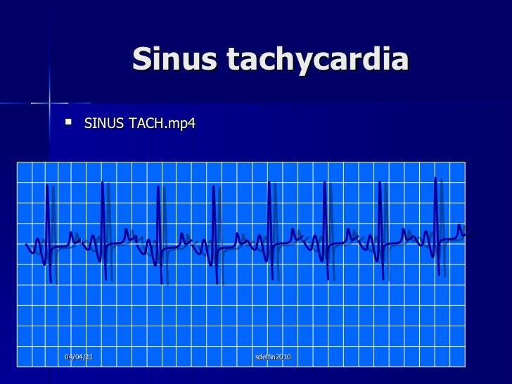 Sinus tachycardia <ul><li>SINUS TACH.mp4 </li></ul>04/04/11 sdelfin2010