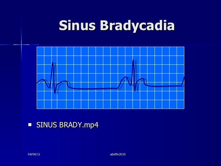 Sinus Bradycadia <ul><li>SINUS BRADY.mp4 </li></ul>04/04/11 sdelfin2010