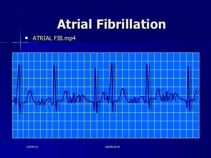 Atrial Fibrillation <ul><li>ATRIAL FIB.mp4 </li></ul>04/04/11 sdelfin2010