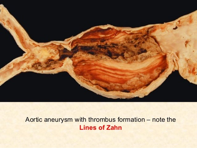 4 hemostasis thrombosis for Aortic aneurysm with mural thrombus