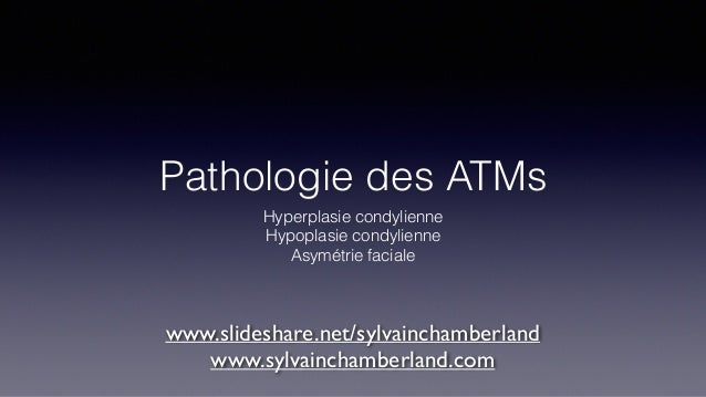 Pathologie des ATMs Hyperplasie condylienne Hypoplasie condylienne Asymétrie faciale www.slideshare.net/sylvainchamberland...