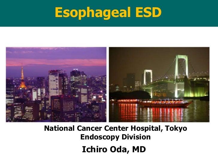 Esophageal ESDNational Cancer Center Hospital, Tokyo          Endoscopy Division          Ichiro Oda, MD