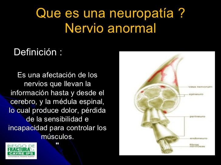 4.otras causas de dolor neuropatico