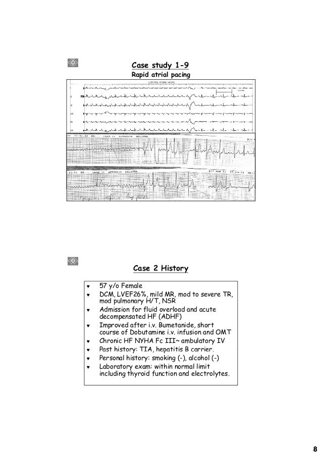 pacemaker case study The cardiac pacemaker has emerged as a case study for evaluating the effectiveness of techniques for the verification and design of embedded systems with complex control requirements.