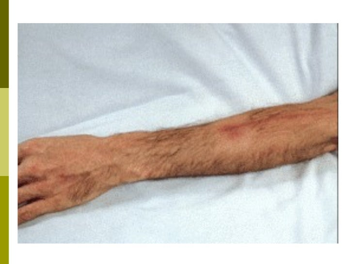 sclerosed veins for phlebotomy 40088847 intravenous-therapy