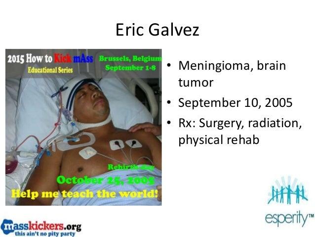Eric Galvez • Meningioma, brain tumor • September 10, 2005 • Rx: Surgery, radiation, physical rehab