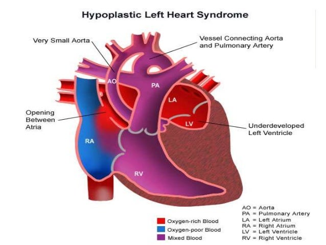 Left Ventricular Outflow Tract Obstruction