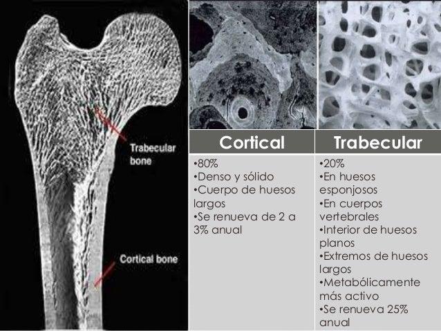 41 osteoporosis osetomalacia