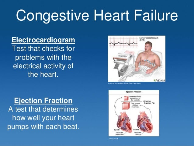 Case Report: Congestive Heart Failure - pharmacytimes.com