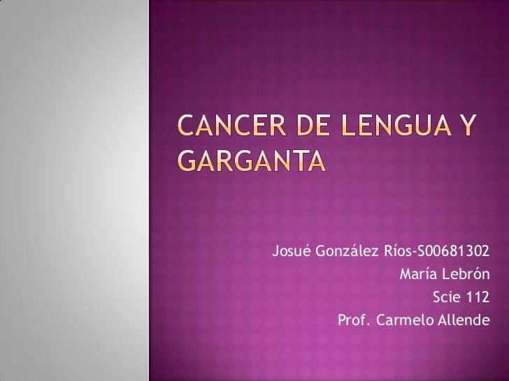 Cancer de lengua y Garganta<br />Josué González Ríos-S00681302<br />MaríaLebrón<br />Scie 112<br />Prof. Carmelo Allende<b...