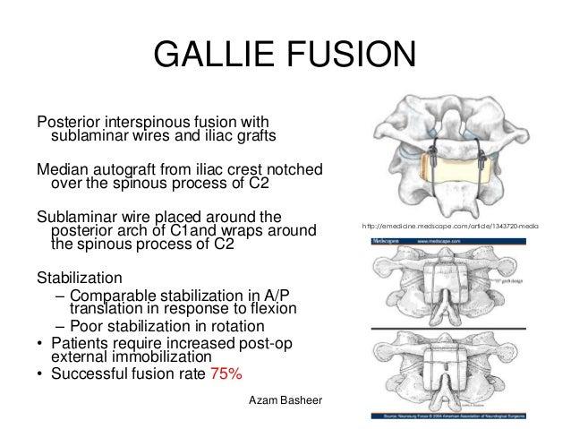 upper c spine fractures azam basheer 74