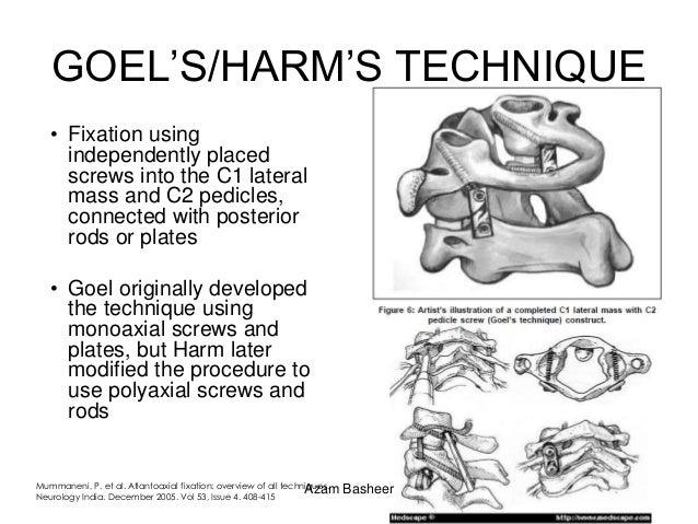 cervical translaminar epidural steroid injection