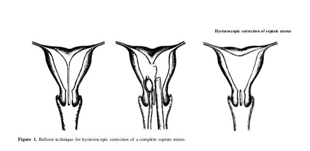 Hysteroscopic correction of septate uterusFigure 1. Balloon technique for hysteroscopic correction of a complete septate u...