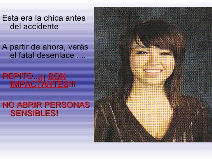 <ul><li>Esta era la chica antes del accidente </li></ul><ul><li>A partir de ahora, verás el fatal desenlace .... </li></ul...