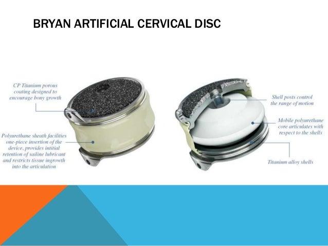 Bryan cervical disc prothesis