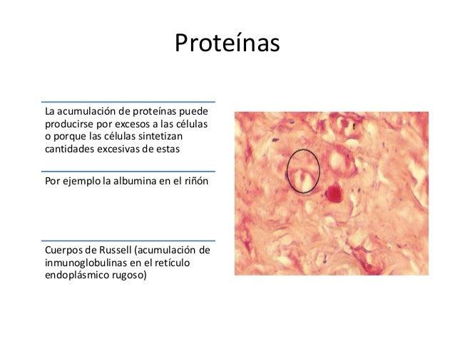 PIGMENTOS • Sustancias coloreadas, algunas de las cuales son elementos de las células (melanina), mientras que otras son a...