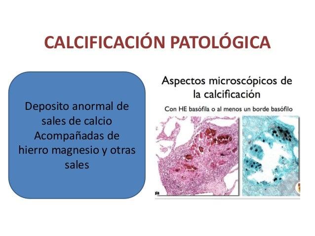 Calcificación metastásica • Cuando existe una hipercalcemia • Cuatro causas fundamentales: Puede afectar de forma difusa a...
