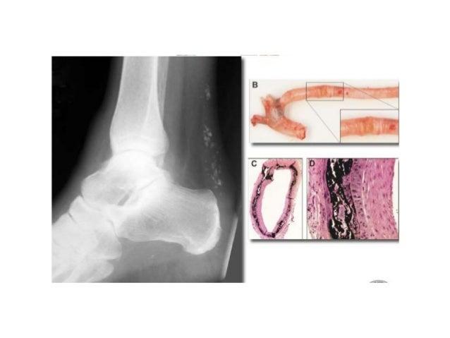 Autofagia, heterofagia, acumulaciones intracelulares, envejecimiento celular