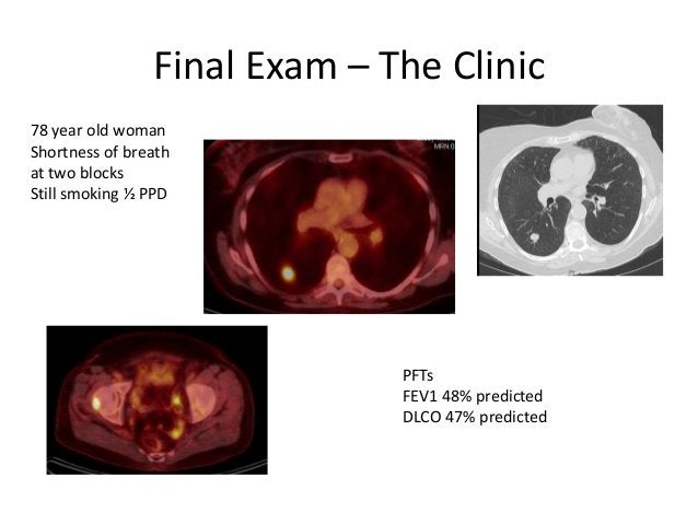 Final Exam – The Clinic78 year old womanShortness of breathat two blocksStill smoking ½ PPD                              P...
