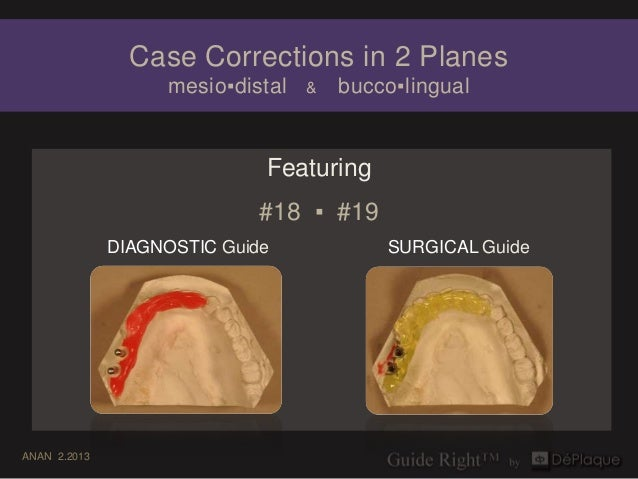 Case Corrections in 2 Planes                    mesio▪distal   &   bucco▪lingual                             Featuring    ...
