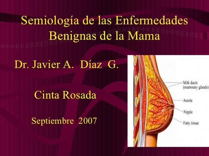 Semiología de las Enfermedades Benignas de la Mama <ul><li>Dr. Javier A.  Díaz  G. </li></ul><ul><li>Cinta Rosada </li></u...