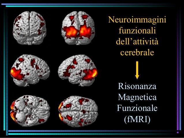Neuroimmagini funzionali dell'attività cerebrale Risonanza Magnetica Funzionale (fMRI)