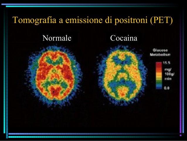 Neurobiologia delle emozioni